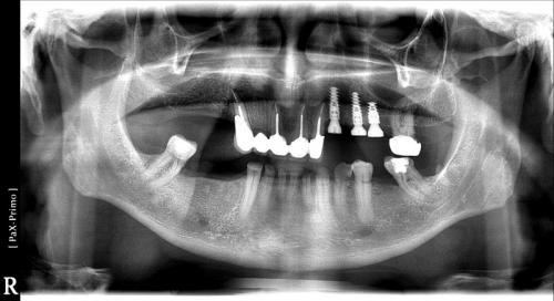 implant-10 (6)