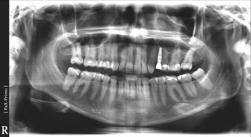 implanty1 (9)