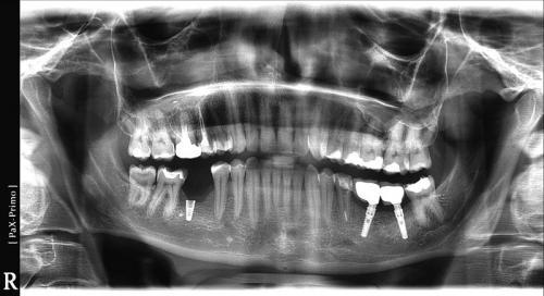 implanty30 (7)
