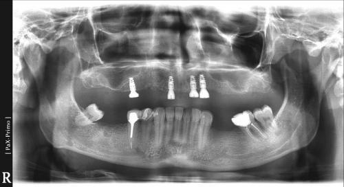 implanty1 (11)